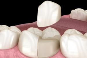 Restorative Dental Care Ambleside
